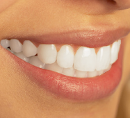 Beautiful Smile - Invisalign Raleigh, NC