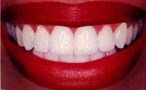 white-teeth smile