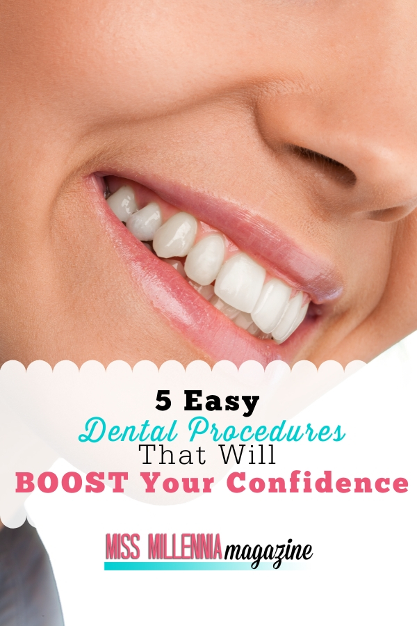 F-image-5-Easy-Dental-Procedures-That-Will-Boost-Your-Confidence